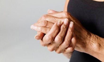 La artrosis sintomática de mano se asocia a mayor riesgo de infarto