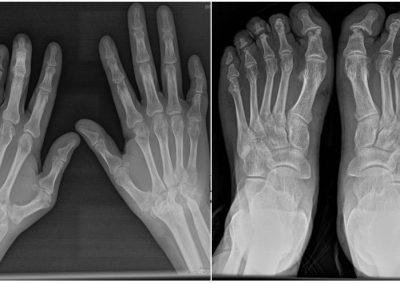 Artritis psoriásica erosiva.