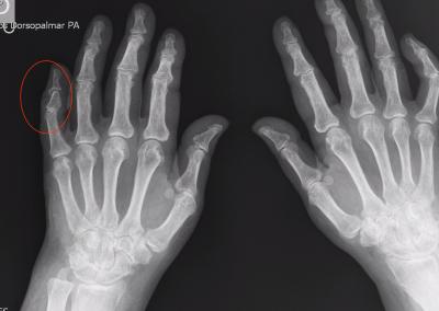 Lápiz en copa 5º dedo mano derecha.