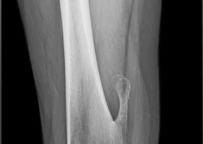 Osteocondroma pediculado.