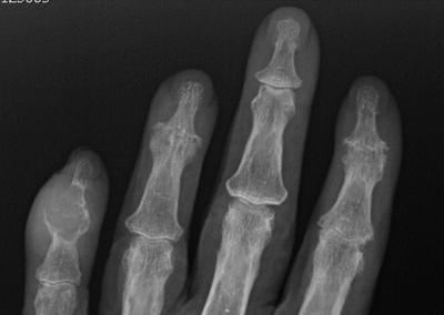 Coexistencia de gota y artritis psoriásica