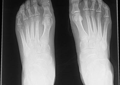Osteoporosis moteada.