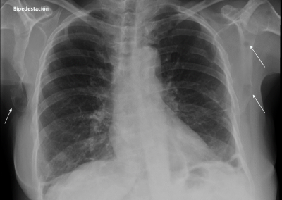 Metástasis líticas óseas de Ca de mama.