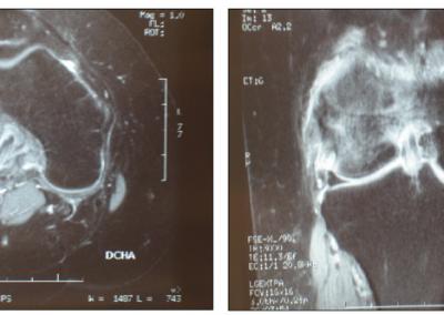 Osteoporosis transitoria.