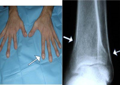 Acropaquias y periostitis en paciente con osteoartropatía hipertrófica.