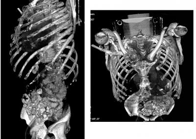 TC reconstrucción: lesiones líticas por mieloma.