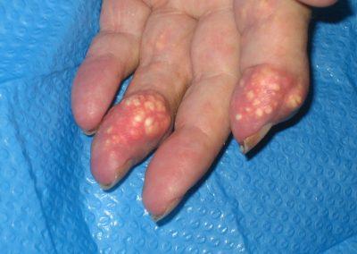 Tofos en paciente con artropatía gotosa