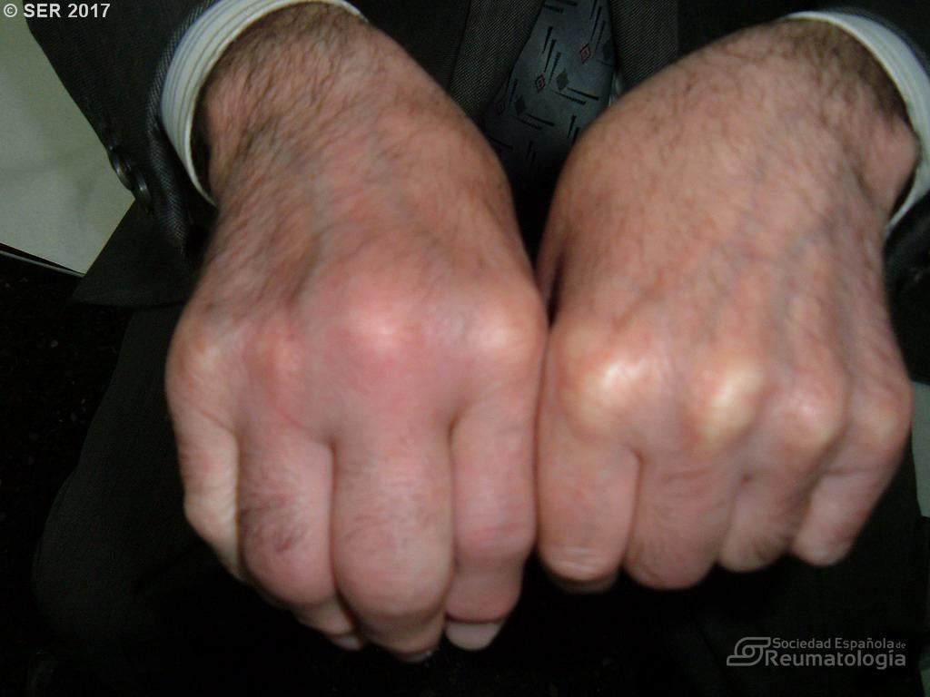 Artritis de metacarpofalángica por cristales de pirofosfato Fondo de imagen de la SER