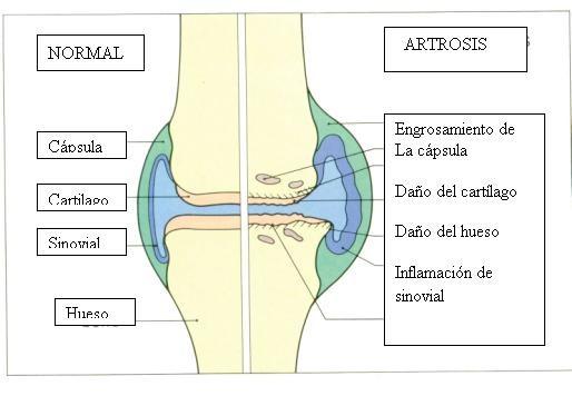 http://www.artritisylupus.com/articulos_pacientes/artrosis.html