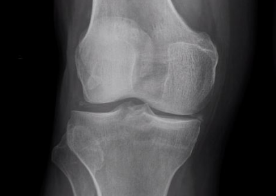 Condrocalcinosis en rodilla. Calcificación meniscal