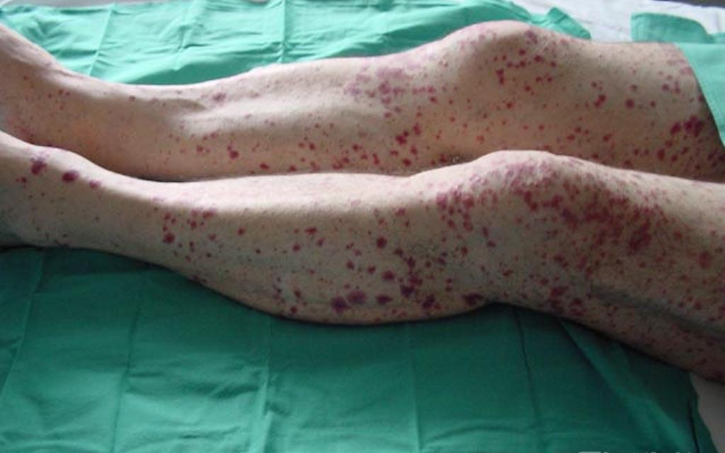 Wegener de vasculitis de tratamiento la