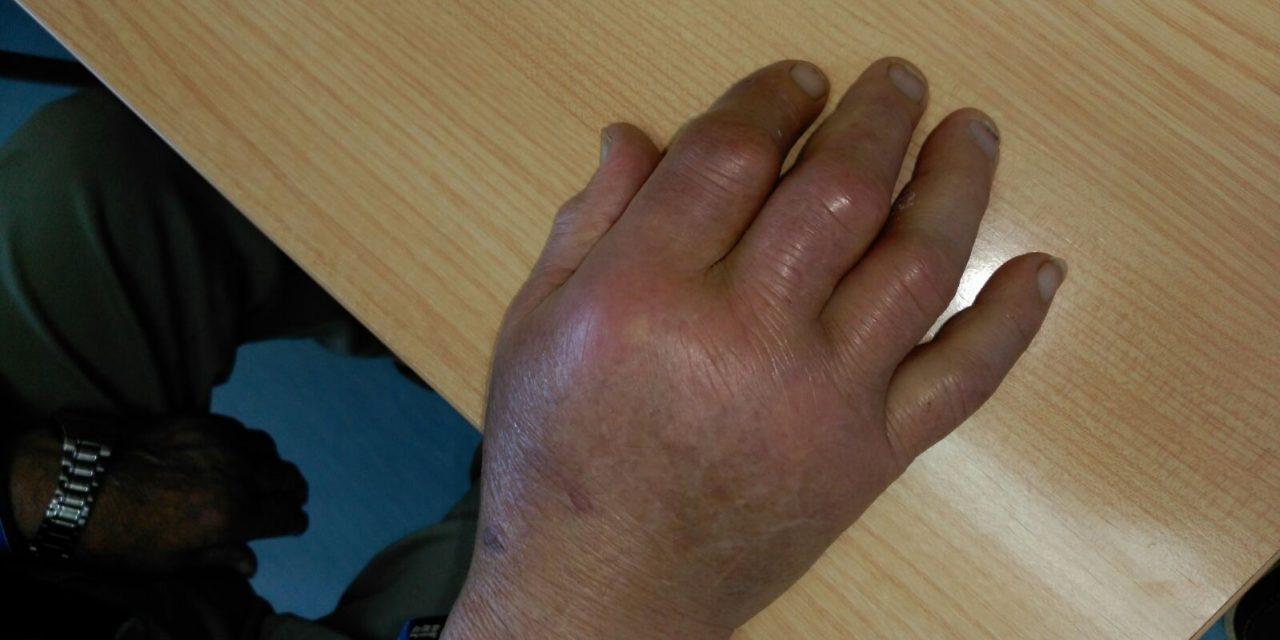 Sintomas acido urico alto pies
