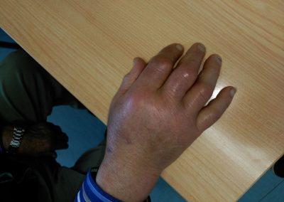 Artritis de la mano